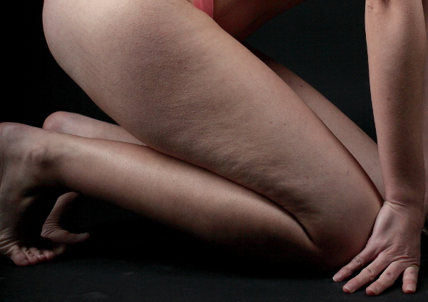 Woman with Cellulite on Legs and Buttocks